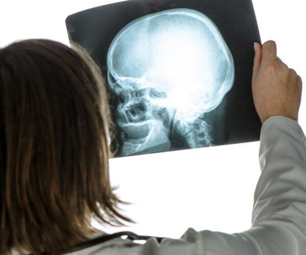Wie der Markt für medizinische Bildgebung immer stärker wächst